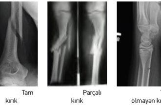 Röntgen nedir ve niçin kullanılır?