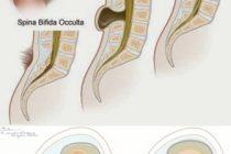 Spina Bifida (bel açıklığı) Hastalığı Nedir?